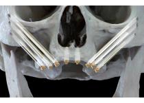 Alternativas, sin regeneración, para el manejo de la atrofía severa de los maxilares. Conferencia JTI2017