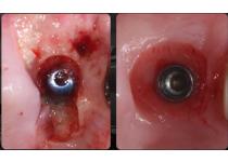 Colocación de Implantes Post-Extracción en zonas posteriores. Dr Nicolás Aronna Mallia