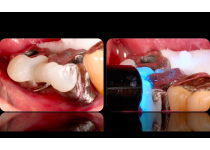 Detalles para evitar complicaciones en la prótesis fijas sobre implantes