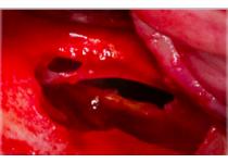 Manejo de perforaciones de la membrana de Schneider en Elevación de Seno Maxilar