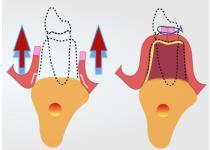 Protocolo de Incisiones en Cirugía Oral para una Regeneración Ósea  Exitosa
